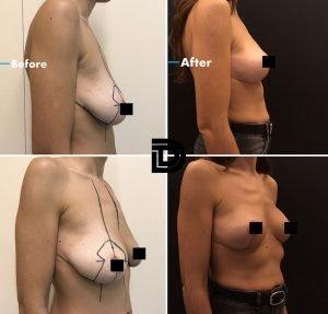 breast2