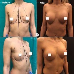 breastaugx1