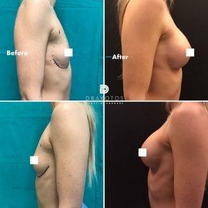breastaugx2